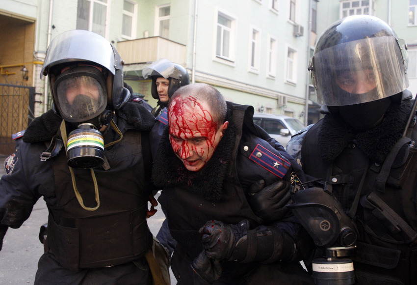 Ukraine Uprising Bloody Head